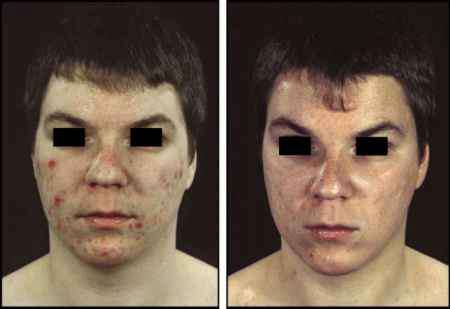 Doxycycline Before And After Acne