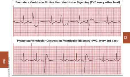 Sudden onset of SVT - Rhythm Regular - Vertigo Treatment